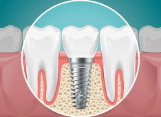 Implantul dentar: plusuri și minusuri