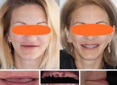 Fără grefe osoase și tratamente de luni sau ani. Implanturi zigomatice Nobel Biocare și dinți ficși în aceeași ședință la clinica Dentastic